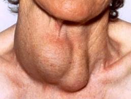 Внешние проявления рака щитовидной железы