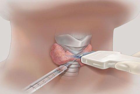 Биопсия проводится под контролем УЗИ
