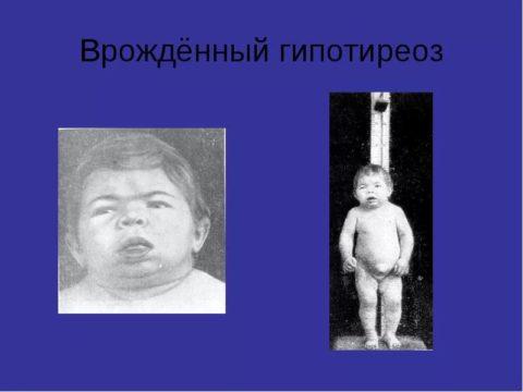 Болезнь кретинизм на фоне врожденного гипотиреоза.