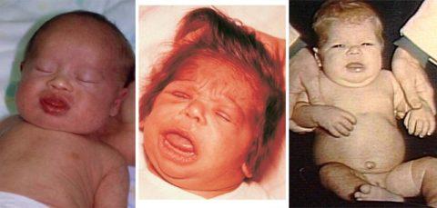 Дети со врожденной гипоплазией щитовидной железы