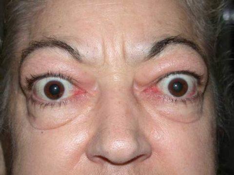 Диффузно токсический зоб тиреотоксикоз в 85% случаев встречаются одномоментно