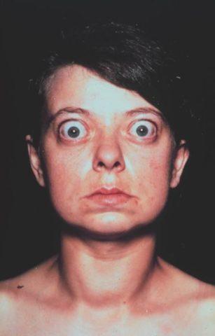 Для ДТЗ характерная яркая глазная симптоматика