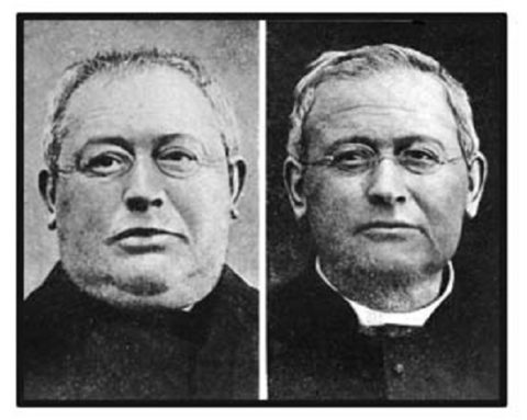 Фото человека с гипотиреозом (слева) и после проведенного успешного лечения заболевания (справа)