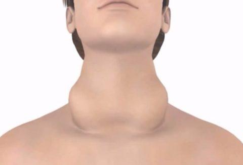 Фото зоба, результата активной пролиферации щитовидной железы