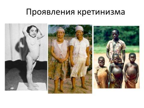 Фотографии больных кретинизмом в различном возрасте