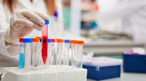 Гормональный скрининг — важный элемент диагностики причин бесплодия и невынашивания
