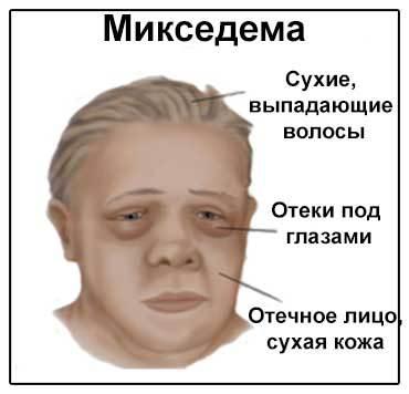 Характерное выражение «гипотиреоидного» лица: сухость кожи и плотные отеки, особенно около глаз.