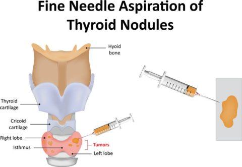 Как делают пункцию щитовидной железы – чего ожидать