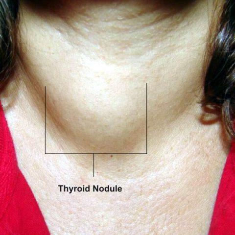 Коллоидный узел у пациентки (отмечен на фото)