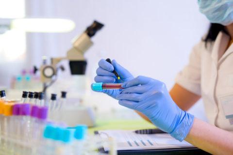 Пероксидаза щитовидной железы: антитела повышены — чем опасно это состояние?