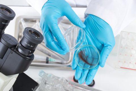 Материалом для исследования служат моча, волосы или ногти
