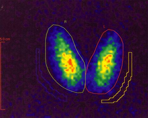 На фото представлена сцинтиграмма щитовидной железы.