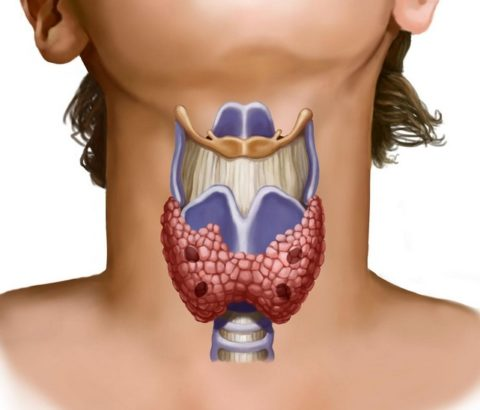 На работу щитовидки негативно влияют многие факторы