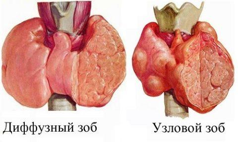 Отличия диффузного и узлового зоба щитовидной железы