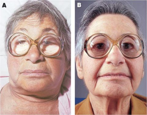 Пациентка с гипотиреозом до (А) и после (В) лечения