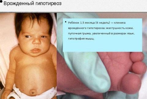 Пример влияния нарушения уровня гормонов щитовидной железы на развитие ребенка