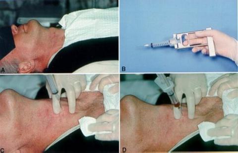 Процедура выполнения тонкоигольной биопсии (видео в этой статье).