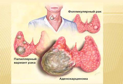 Раковые новообразования на щитовидке могут быть различного характера.