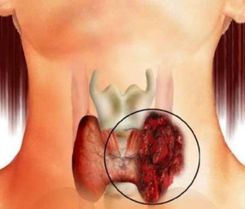 Раковые образования щитовидной железы достаточно успешно поддаются лечению