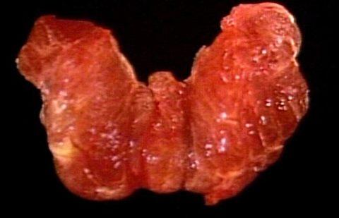 Щитовидная железа.