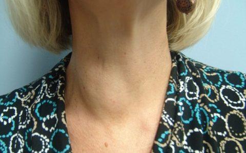 Симптомы при зобе щитовидной железы зависят от степени увеличения зоба и функции железы
