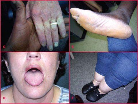 Симптомы запущенного тиреоидита, приведшего к гипотиреозу и повышению уровня ТТГ