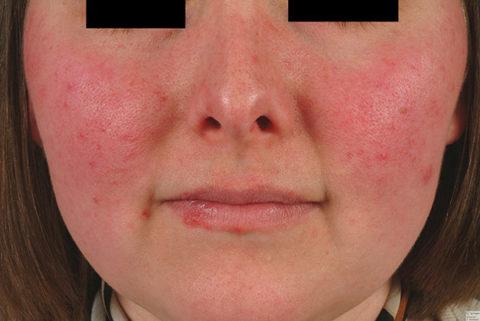 Системная красная волчанка, — одно из аутоиммунных заболеваний, напрямую не поражающих щитовидную железу, однако вызывающих увеличение содержания АТ ТПО