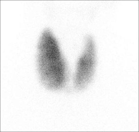 Сцинтиграфия щитовидной железы – что это такое