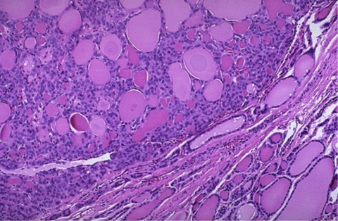 Так аденома выглядит под микроскопом