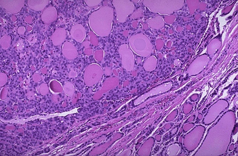 Что такое фолликулярная опухоль щитовидной железы