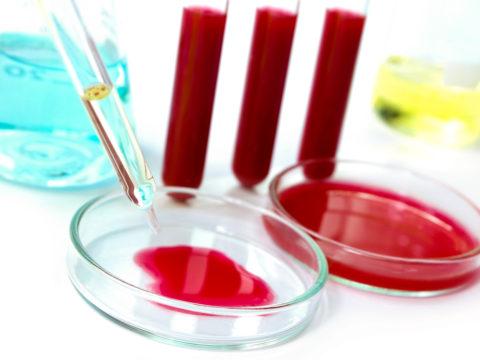Цена комплексного анализа на гормоны щитовидки колеблется в пределах 1000-2000 р.