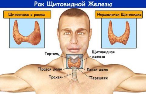 Удаление щитовидки при раковых опухолях иногда влечет радикальное удаление паращитовидной железы.