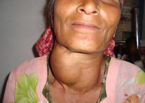 Увеличение щитовидки до огромных размеров – один из признаков эндемического зоба