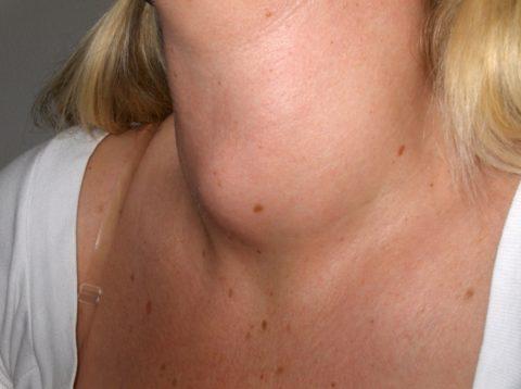 Увеличение щитовидки за счет узлов влияет на контуры шеи