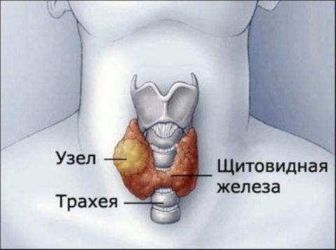 Узел в щитовидке – нередкая проблема