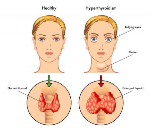 В некоторых случаях повышенный уровень ТТГ может сопровождаться тиреотоксикозом
