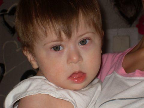 Вид ребенка с врожденным гипотиреозом