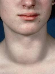 Вид шеи человека, страдающего тиреоидитом