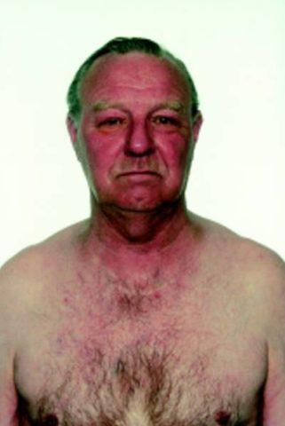 Внешний вид больного с синдромом сдавления верхней полой вены.