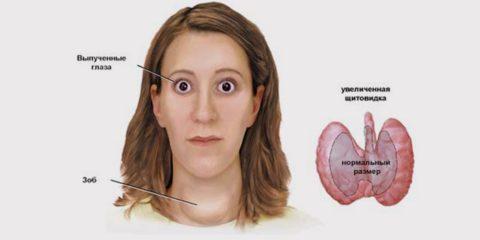 Внешний вид больного с выраженным тиреотоксикозом