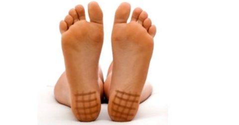 Йодная сетка – простейший способ самостоятельной диагностики йододефицита
