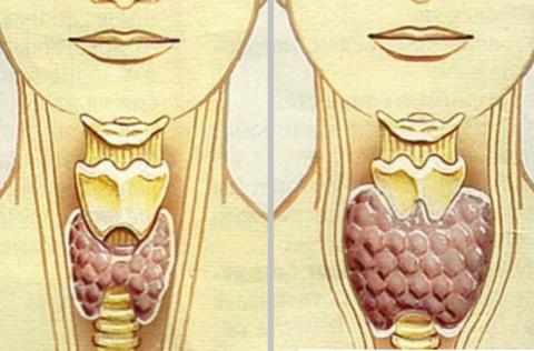 Аутоиммунного тиреоидита причины могут быть внешними или внутренними