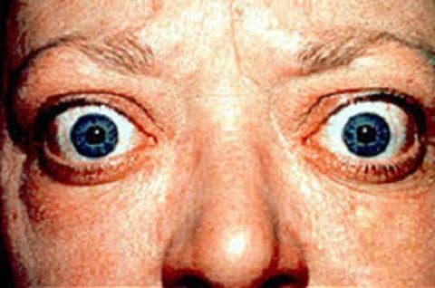 Диффузно токсический зоб – причины связаны с генетическими дефектами