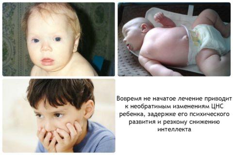 Гипотиреоз у ребенка: результат недостаточности йода на лицо и не только.