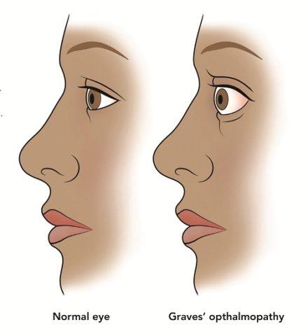 Характерным проявлением ДТЗ является офтальмопатия Грейвса