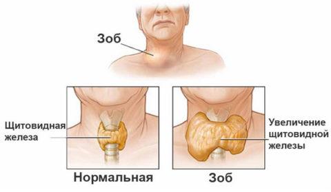 Как проявляется дисфункция щитовидной железы.
