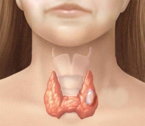 Рак щитовидной железы: прогноз для жизни. Возможные осложнения после терапии