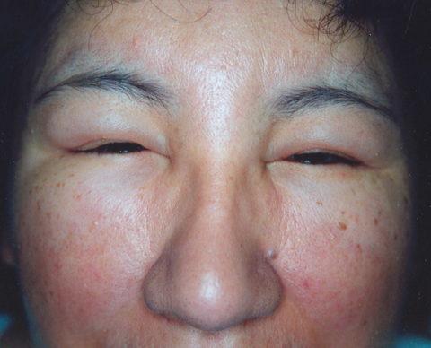 Микседему необходимо лечить, так как она может привести к серьезным осложнениям.