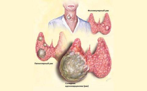 При комплексном лечении карцинома щитовидки дает благоприятные прогнозы на жизнь.