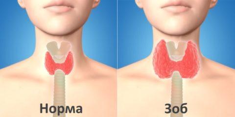 Различие размеров щитовидки.